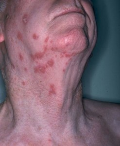 Herpetic_shingles
